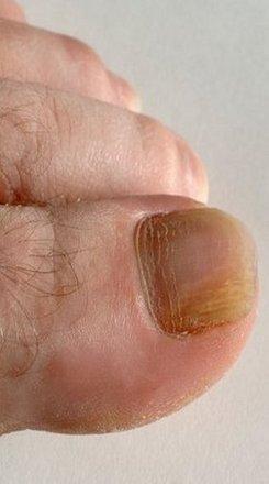Onychomycosis__nail_fungus_