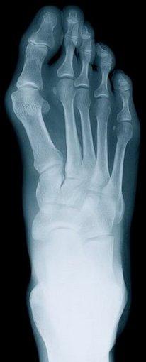 Rheumatoid_arthritis1