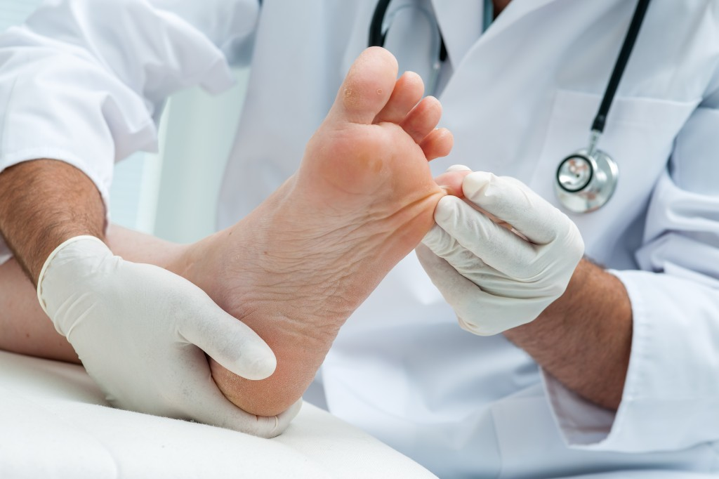Doctor Treating Diabetic Foot Ulcer