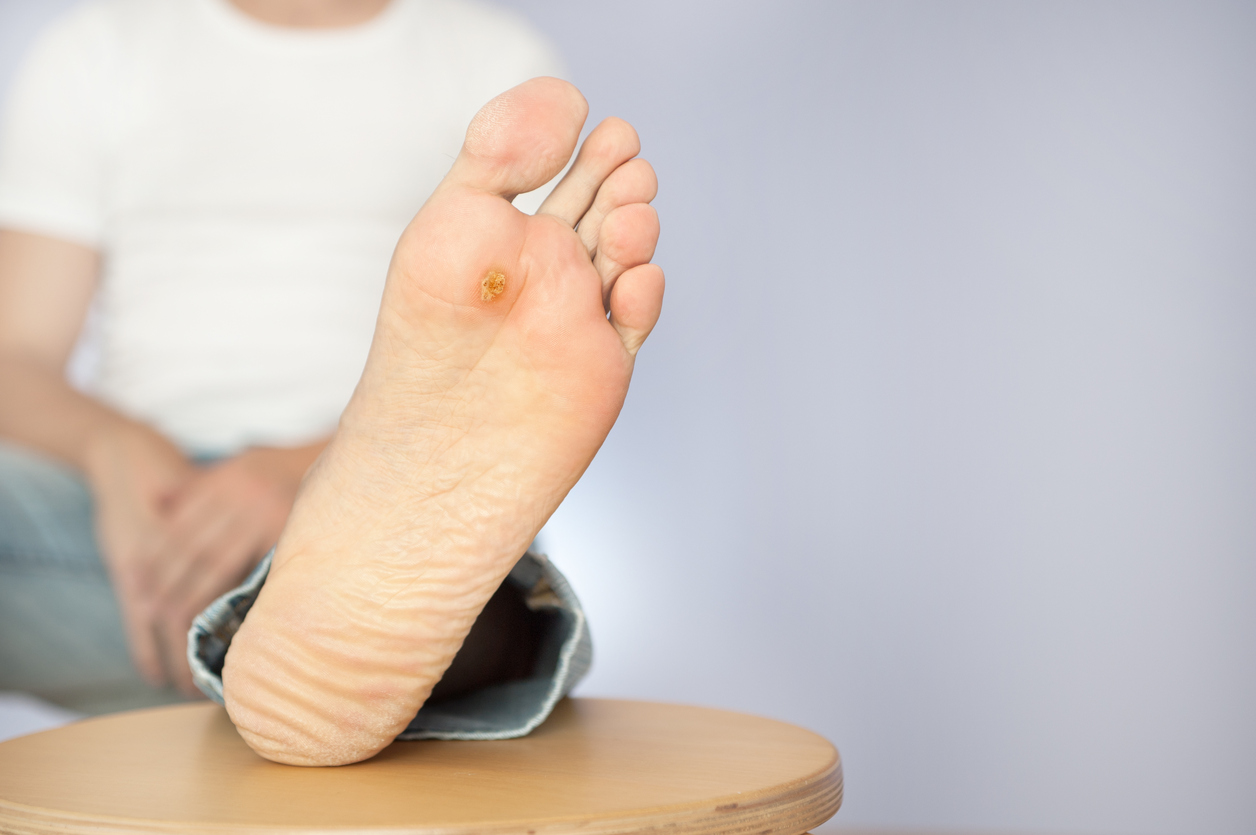 U201csmart U201d Technology Offers Promise For Prevention Of Diabetic Foot Ulcers